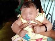 Le Vietnam annonce un premier cas d'enfant atteint d'une microcéphalie