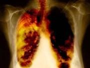 Renforcement de la communication sur les effets nocifs du tabac